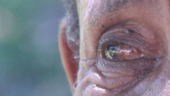 Marshalls Islands hit with pink eye epidemic