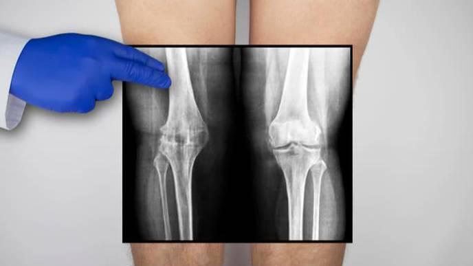 Natural Cartilage Matrix Suitable as a Biomaterial for Improved Cartilage Regeneration