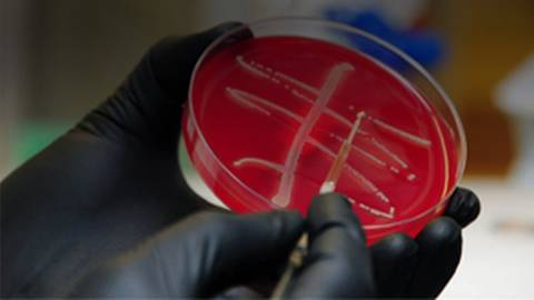 CDC Reports American Case of Colistin-Resistant Superbug