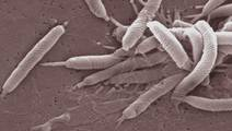 Research Links Specific H. Pylori Strain with Stomach Cancer Risk
