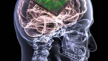 Brain 'Pacemaker' for Alzheimer's