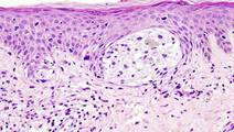 Combination Approach Shows Promise for Beating Advanced Melanoma