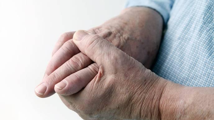Rheumatoid Arthritis Sufferers Likely to Die Earlier