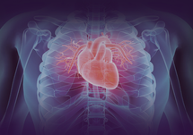 Medscape Microsite- Learn How to Better Manage LDL-C in Patients With a Recent MI