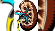 Major Progress in Correcting Genetic Kidney Disease