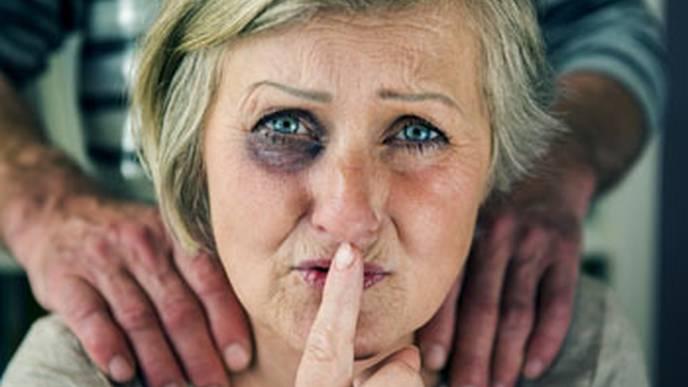 Elder Abuse Identification in Emergency Departments is Abysmal