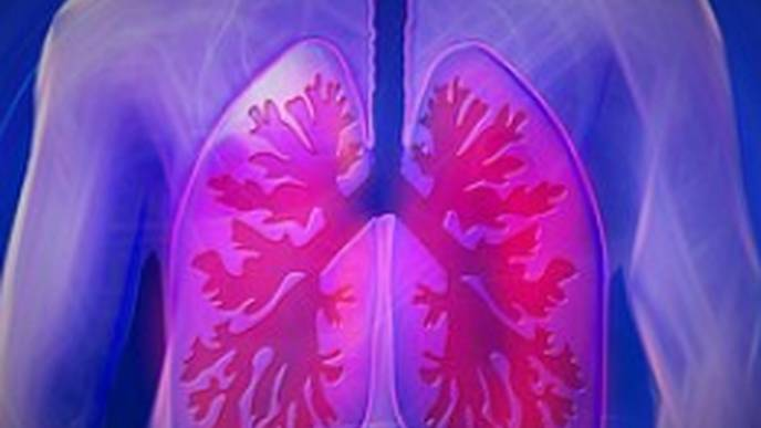 Lung Disease Increasingly Detected in Children with SJIA