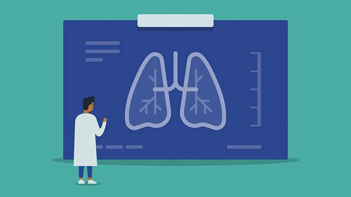 Repurposing Tocilizumab in Scleroderma Patients May Prevent Early Lung Disease