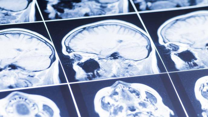 A 'Sniff Test' Signals Consciousness After a Brain Injury, Study Shows