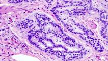 Quicker, Safer Test Could Accurately Detect Some Bowel Cancers