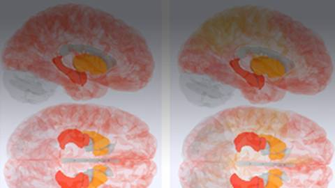Tissue-Specific Protein Clusters May Help Predict Risk of Alzheimer's Disease