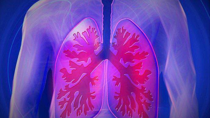 Increased GERD Risk in End-Stage Lung Disease Without Esophageal Disease