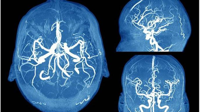 Why Are Women More Likely to Have Brain Aneurysms Compared to Men?