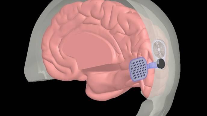 Blind Patients to Test Bionic Eye Brain Implants