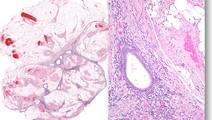 Gene Sequencing Study Reveals Unusual Mutations in Endometriosis