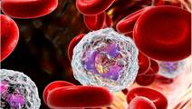 Neutrophil Nanosponges Soak Up Proteins That Promote Rheumatoid Arthritis