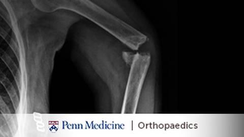 Orthopaedic Trauma: Healing Bones & Restoring Function