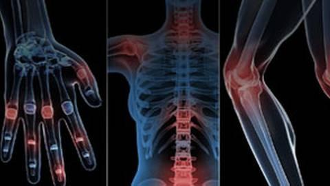 Addressing Rheumatic Diseases: Diagnostic and Treatment Updates