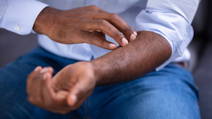 Research Uncovers Connections Between Psoriasis & Joint Disease