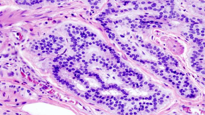 Researchers Identify New Therapeutic Target for Colorectal Cancer