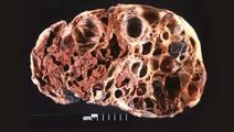 Milestone Study Accurately Predicts Rheumatoid Arthritis