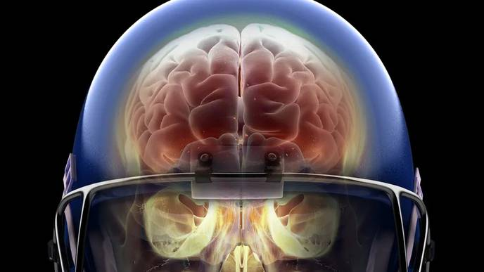 Light Therapy is Safe, Modulates Brain Repair, & May Benefit Patients With Moderate TBI