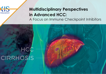 Multidisciplinary Perspectives in Advanced HCC:  A Focus on Immune Checkpoint Inhibitors