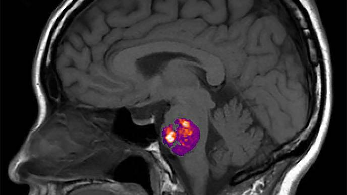 Study Ties Stroke-Related Brain Blood Vessel Abnormality to Gut Bacteria