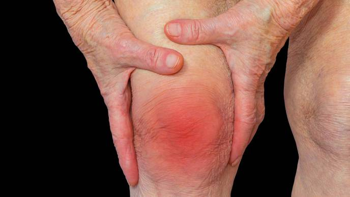 IBD & Type I Diabetes Increase Chances of Developing Rheumatoid Arthritis