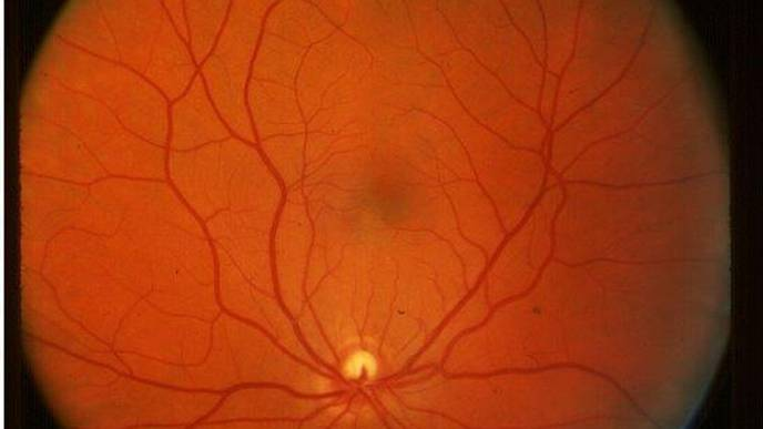 Routine Eye Scans May Give Clues to Cognitive Decline in Diabetes