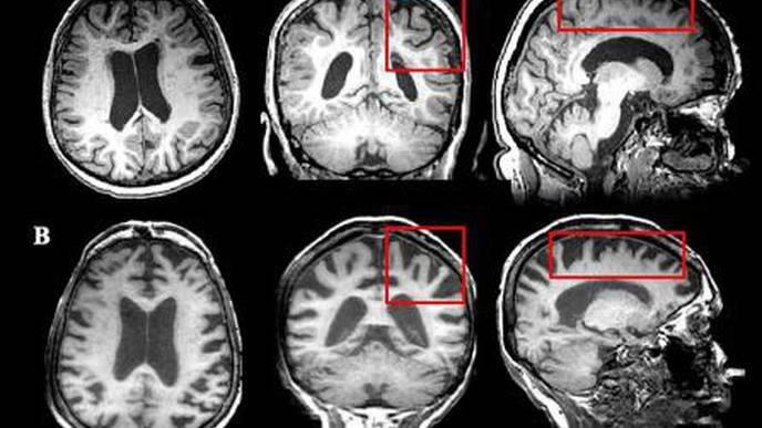 Study Looks at Neurodegeneration in MS Patients as They Age
