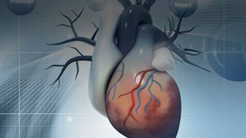 Comparative-Effectiveness Research on Implantable Cardioverter Defibrillators