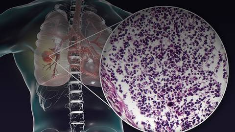 New Approaches to Treating Non-Small Cell Lung Cancer