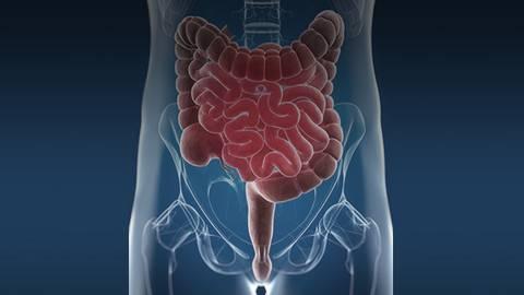 Investigating IBS & IBD: An Exploration into Lifelong Management