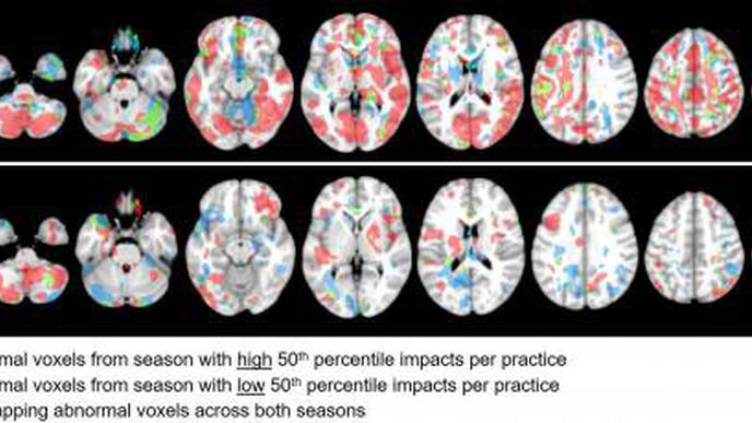 Associations Between Head Impact Exposure & Abnormal Imaging Findings in Youth Football Players Over Consecutive Seasons