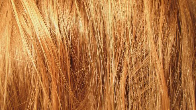Some Skin Cancers May Start in Hair Follicles
