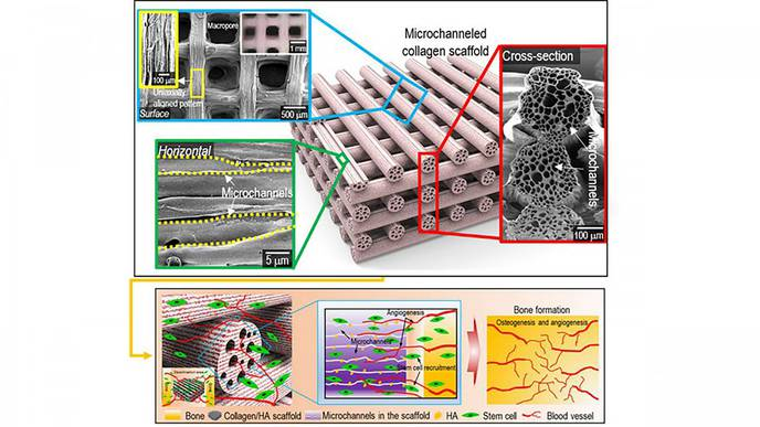 4D Printing Strategy Helps Fabricate Biomimetic Microchannel Scaffold for Spinal Fusion