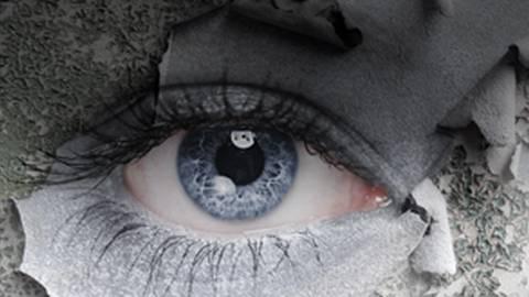 Dry Eye Disease: Effect of Re-esterified Omega-3 Supplementation