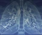 COPD: Why Appropriate Device Selection is Important