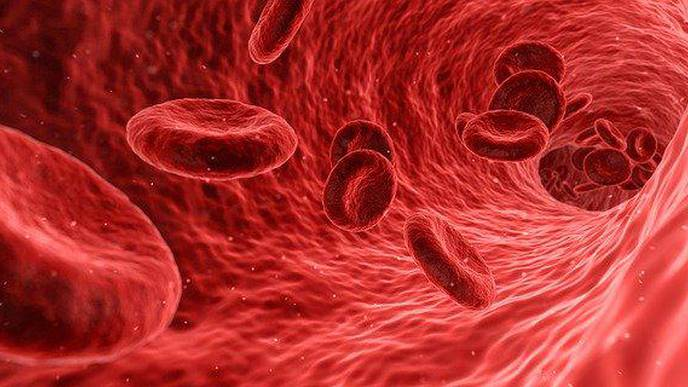 Higher Levels of NETs in Blood Associated with More Severe COVID-19