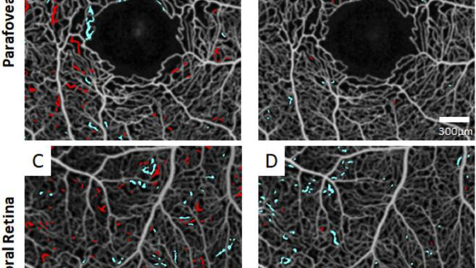 Ophthalmologists Develop New Technique to Assess Progression of Sickle Cell Retinopathy