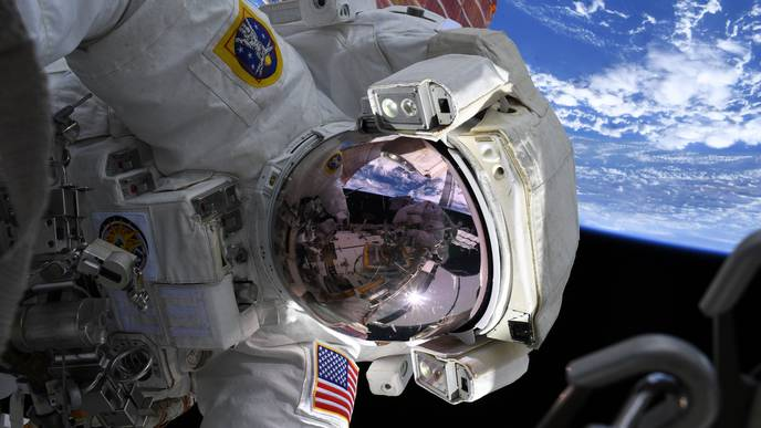 Astronaut's Blocked Vein, Treated in Space, Brings Medical Insight