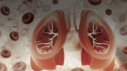 Gasping for Air: Asthma Heterogeneity and What it Means for Your Patients