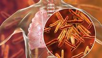 How an AI Model Helps to Predict TB Resistance