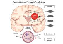 Onco-Epilepsy: Simultaneous Management of Tumor and Seizures