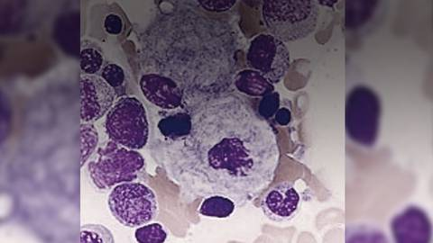 Unexplained Hematologic Abnormalities: Could It Be Type 1 Gaucher Disease?