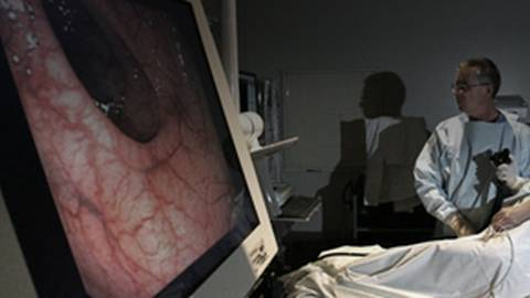 Improving Surveillance for Colorectal Cancer in IBD Patients