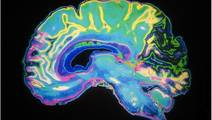 Ultra-Slow Waves in Brain Directly Linked to Consciousness