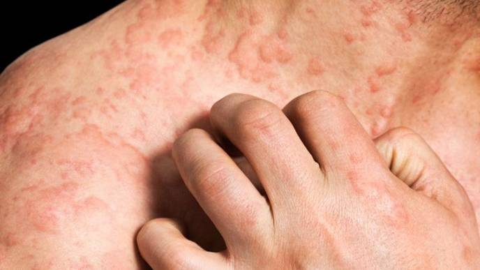 Food Allergy Linked to early Skin Infection and Eczema - Be