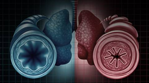 Uncontrolled Moderate-to-Severe-Asthma: Latest Data from the Floor of CHEST 2018